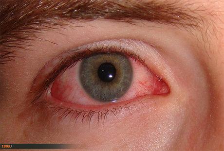 سوزش چشم؛ دلایل و راههای درمان
