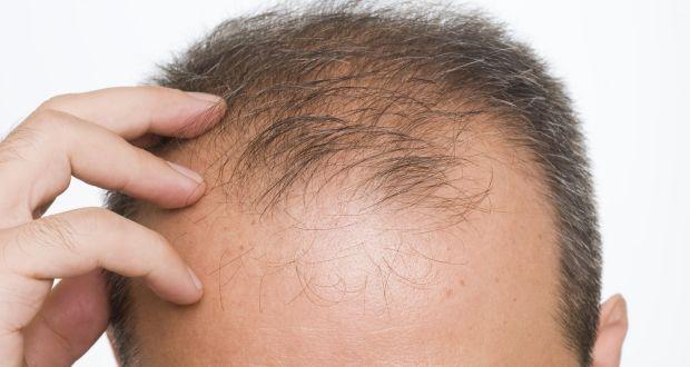 کدام روشها برای درمان ریزش مو مؤثرند؟