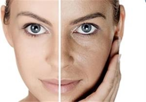 مهمترین نکات درباره برنزهکردن پوست