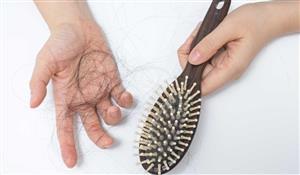 شایعترین نوع ریزش مو و راههای درمان