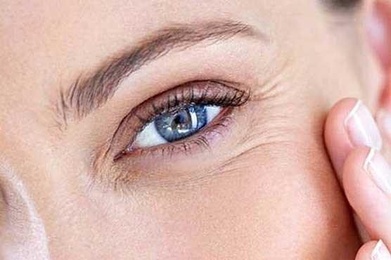 روشهای آسان برای از بین بردن پف زیر چشم