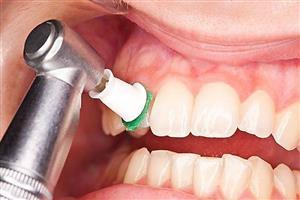 آیا جرمگیری دندان ضرر دارد؟