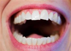 تلخی دهان نشانه چیست؟