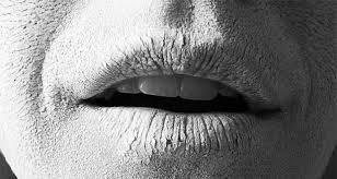 دلیل خشکی دهان چیست؟