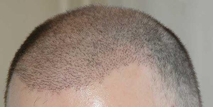 چه کسانی میتوانند عمل پیوند مو انجام بدهند؟