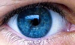 چگونه پف زیر چشمها را از بین ببریم؟