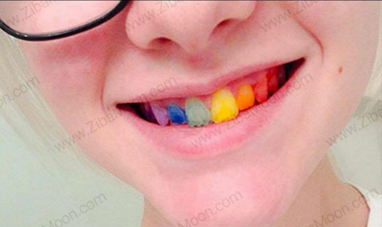 دندانهای رنگی؛ مد جدید آرایشی