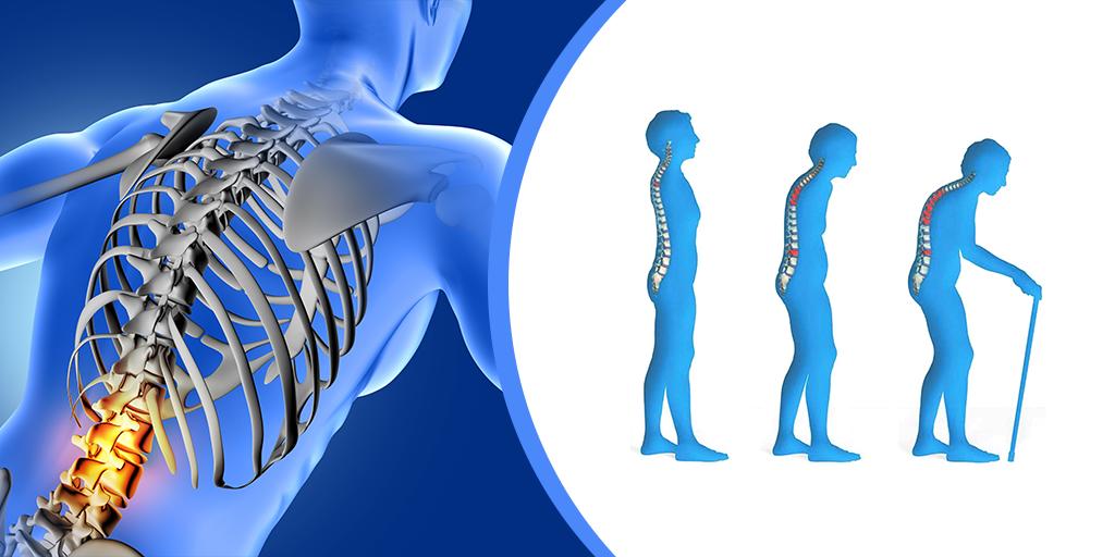 چه عواملی باعث پوکی استخوان میشود