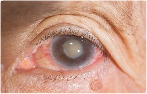 عمل جراحی آب مروارید چشم چه عوارضی دارد؟+  علایم آب مروارید و توصیههای پس از عمل