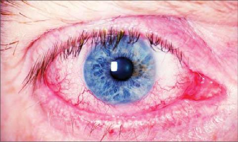 یوئیت چشم چیست؟