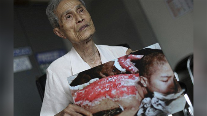 زندگی دردناک بازمانده بمباران اتمی ناکازاکی با دردهای ۷۰ ساله