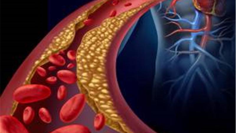 درمان طبیعی کلسترول بالا با طب سنتی