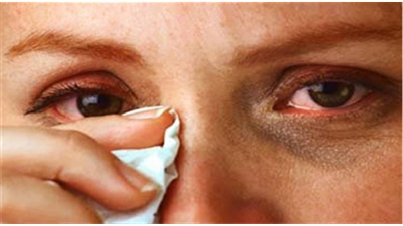 دلیل حساسیت چشـم و راه پیشگیری و درمان چیست