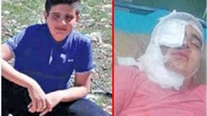 انتقام اسیدی از پسر12 ساله