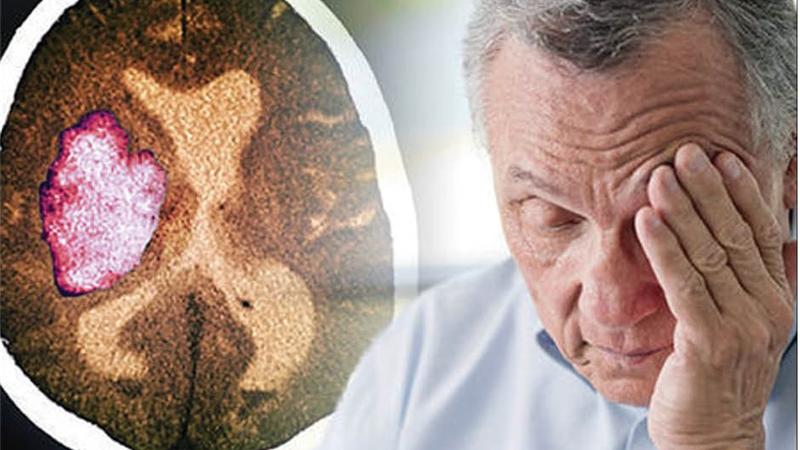 علایم و نشانههای سکته قلبی و مغزی + دلایل و راه پیشگیری