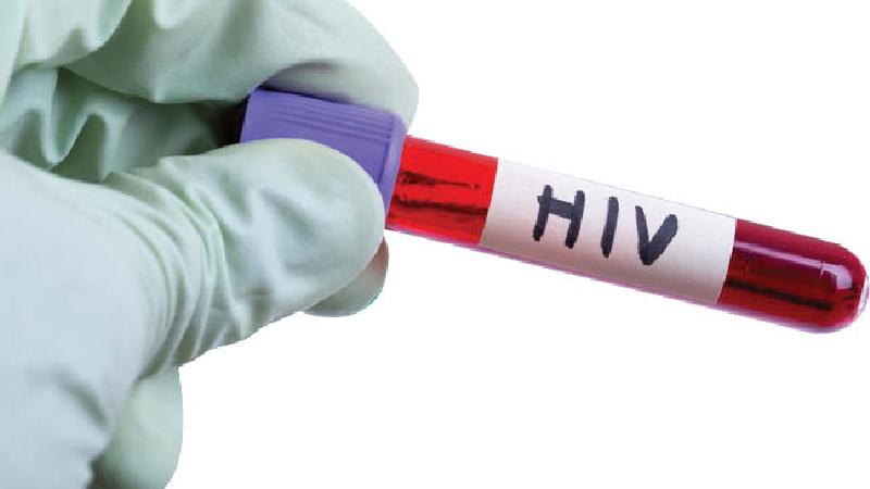ابتلا ایدز چه زمانی مشخص می شود و چه علایمی دارد