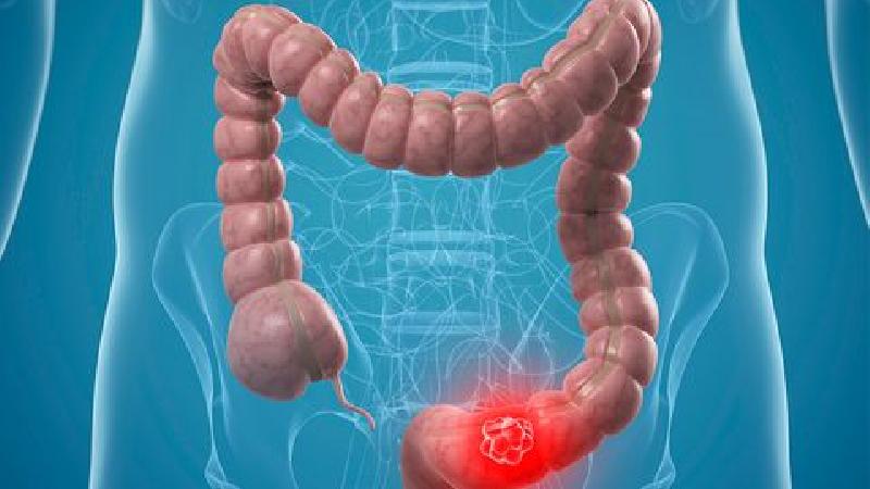 علایم سرطان روده بزرگ چیست؟