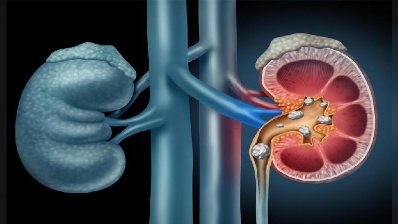 درمان سنگ کلیه بدون نیاز به دارو