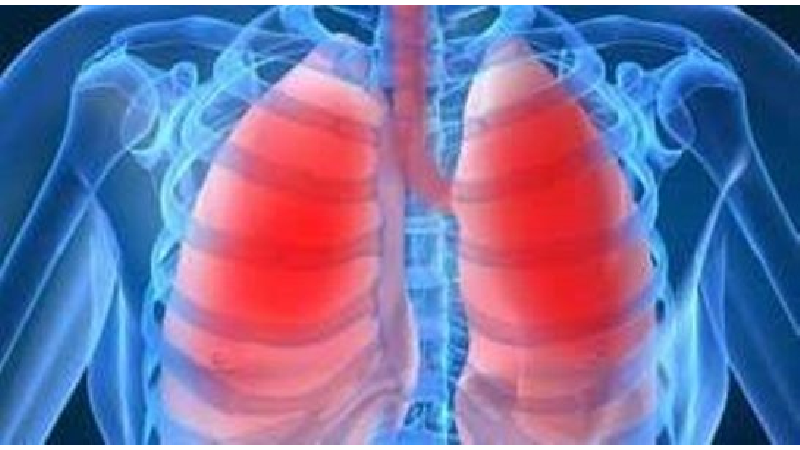 علایم بیماری سل و راههای انتقال آن چیست