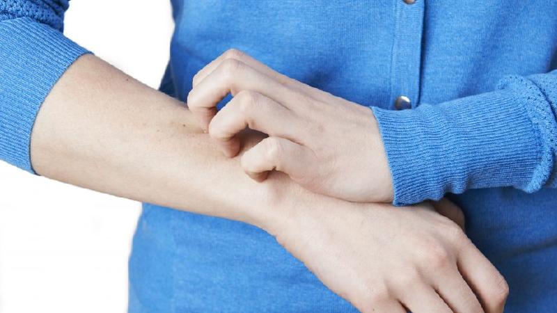 بیماری زونا چیست و چه علائم و عوارضی دارد