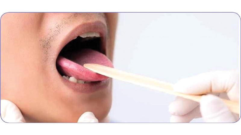 نشانهها و علائم سرطان زبان ؛ از بوی بد دهان تا زخم و درد
