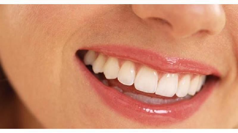 دلایل تغییر رنگ دندان چیست