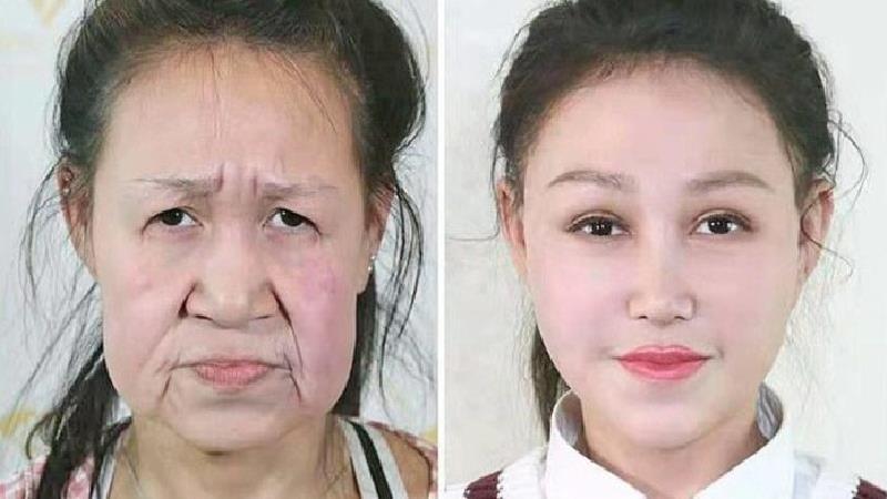 جراحی بیسابقه پیرزنی که فقط 15 سال دارد