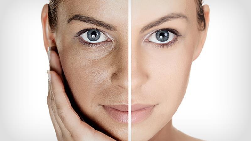 رتینول چیست و چه فایدهای برای پوست دارد؛ از رفع چین و چروک و جای زخم تا استفاده برای دور چشم