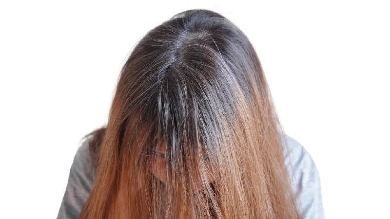 برای تقویت موهای خود چی بخوریم