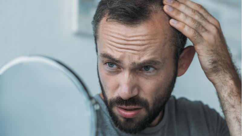 درمان و جلوگیری از ریزش مو با این خوراکیها