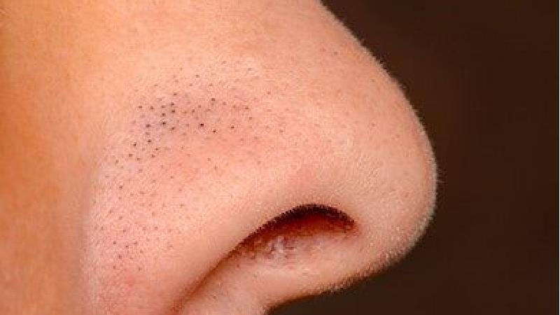 جوش سر سیاه را چگونه از بین ببریم؛ درمانهای خانگی