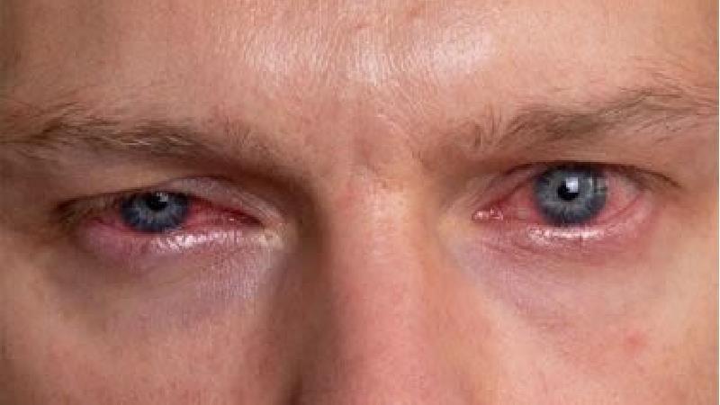 قرمزی چشم چه دلایلی دارد و چه باید کرد