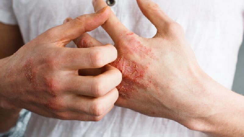 برای خشکی پوست چی خوب است