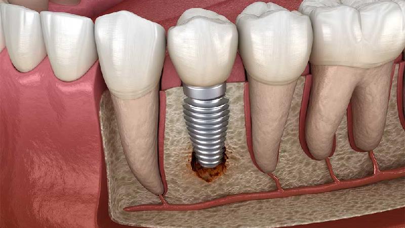 روش هایی به جای ایمپلنت دندان