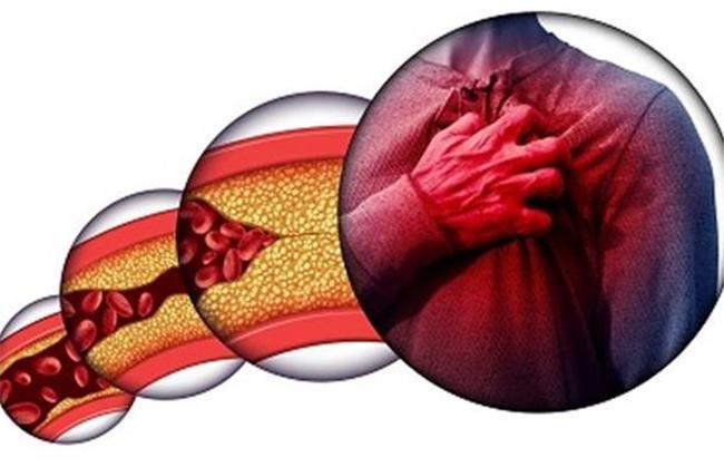 بهترین روشها برای کاهش کلسترول خون بدون دارو