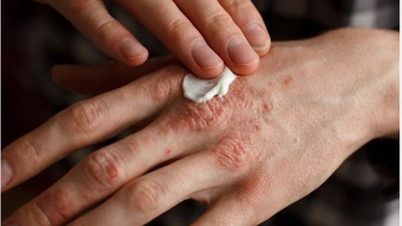 برای درمان اگزما چه کنیم