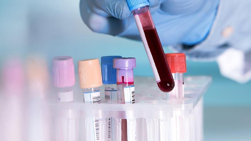 آزمایش خون کامل شامل چیست + دانستنی هایی درباره نتیجه آزمایش خون