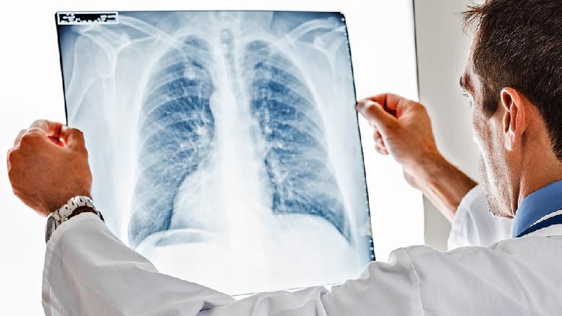 سندروم زجر تنفسی چیست؛ دلایل و راه درمان