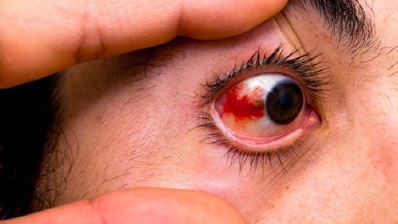 علت ایجاد لکه قرمز در چشم چیست