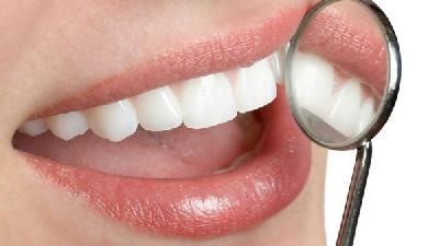 بروساژ یا پولیش دندان چیست و چه فرقی با جرم گیری دارد