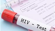 ایدز چه علائمی دارد؟