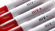 دلیل ابتلای روستاییان لردگان به ایدز  چیست
