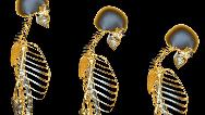 راه پیشگیری از پوکی استخوان + شیوه تشخیص