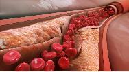 دلایل اصلی بالا رفتن کلسترول خون و راه درمان آن چیست