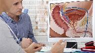 سرطان پروستات؛ علایم و راههای تشخیص
