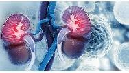 سرطان کلیه چه علائمی دارد + روش تشخیص