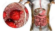 کیست هیداتیک ریه و کبد و چیست و چه علایمی دارد