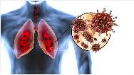 چگونه بفهمیم ریه درگیر کرونا شده است یا نه
